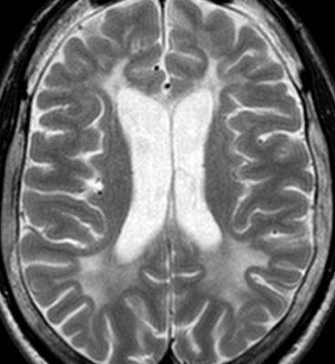 Метахроматична лейкодистрофія